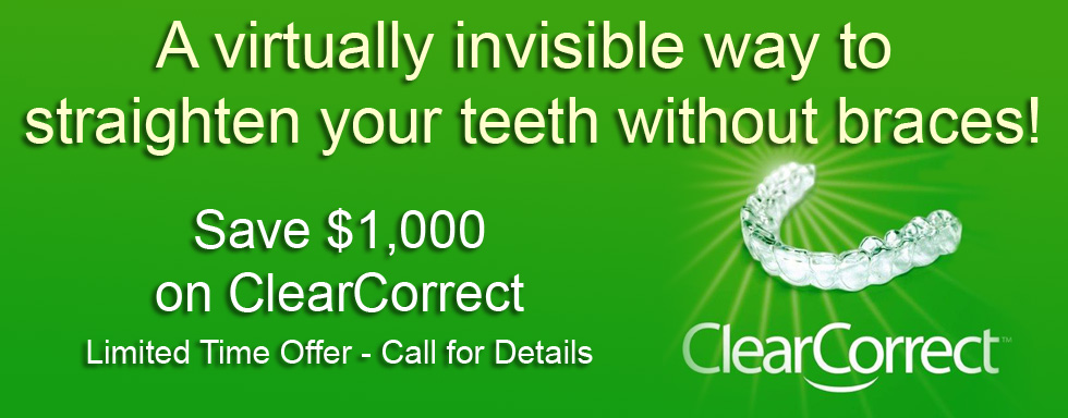 Save $1000 on ClearCorrect