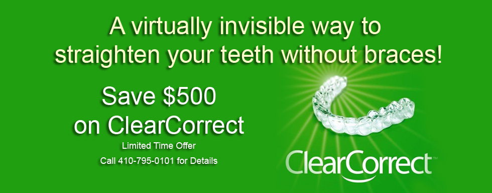 Save $500 on ClearCorrect Invisible Braces