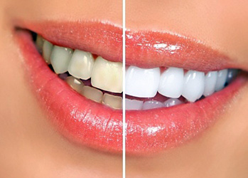 Professional Dental Whitening